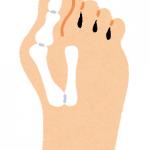 外反母趾の原因と、たいへん効果的な予防方法や改善方法