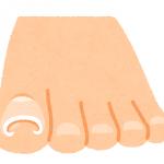 巻き爪の原因は足指の使い方にあった!巻き爪の本当の原因と治療方法